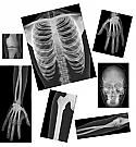 Human X-Rays Anatomy